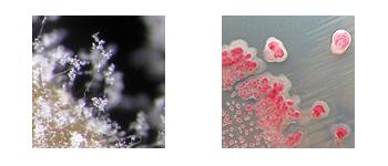 mildiou-bacteries
